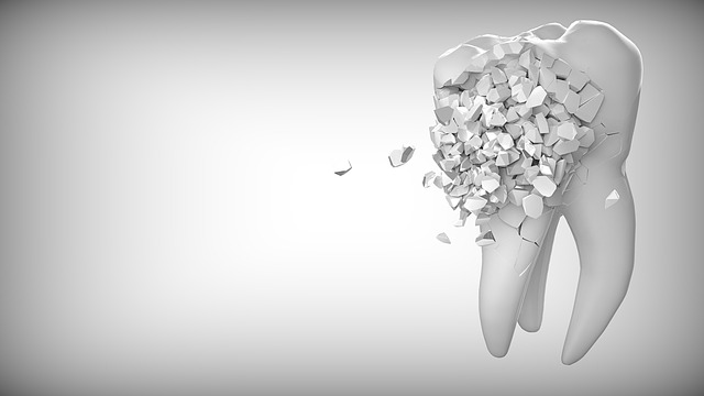 tooth-2874551_640
